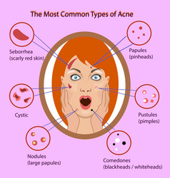 Different type of acne with vector