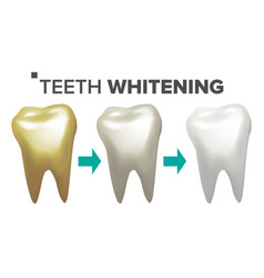 Teeth whitening teeth and tooth dental vector