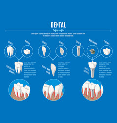 Isometric prosthetic dentistry infographic concept vector