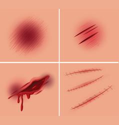 Set of open wound vector