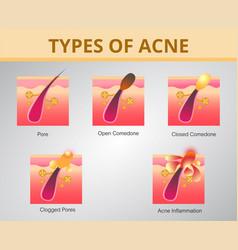 Acnestages developmenthealthy skin design vector