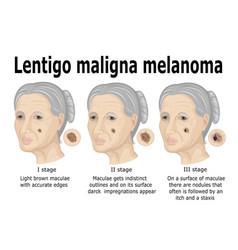 lentigo maligna melanoma vector image vector image