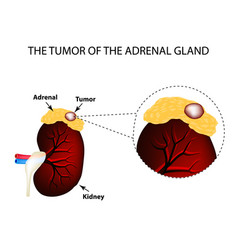 a tumor of the adrenal gland structure of the vector image vector image