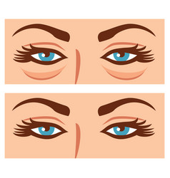 woman eyes before and after cosmetic procedure vector image