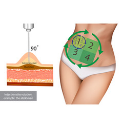 injection site rotation example abdomen vector image