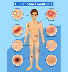 Diagram showing different human skin conditions vector