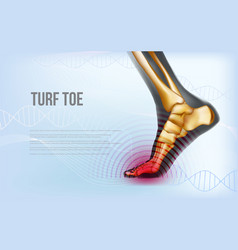 Horizontal turf toe foot traumas banner vector