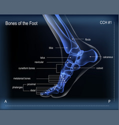 X ray of bones the of foot medial view vector