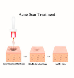 Acne scars laser scar atrophic treatment vector