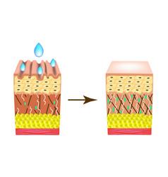 Wrinkles on skin collagen deficiency impact vector