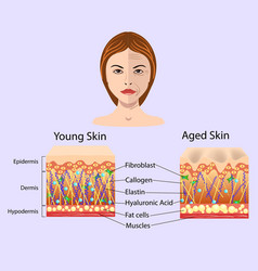 diagram with schemes of two types of skin vector image
