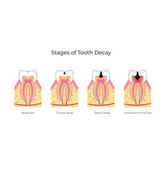 Isolated tooth vector