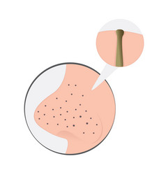 blackheads on nose vector image