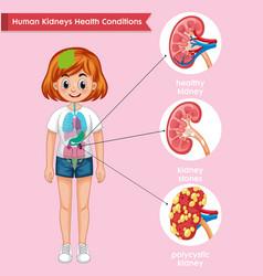 Scientific medical kidney disease vector