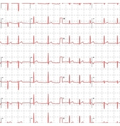 Electrocardiogram red graph with marks on white vector