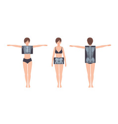 Female patient and her rib cage pelvis and spine vector