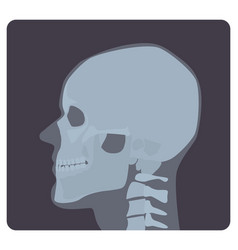 Lateral radiograph of skull x-ray picture or vector