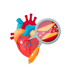 Coronary artery disease concept in flat style vector