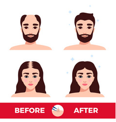hair transplantation before and after vector image