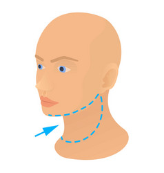 neck plastic correction icon cartoon style vector image