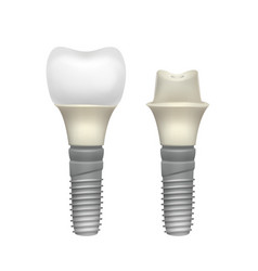plastic assembled tooth implant vector image