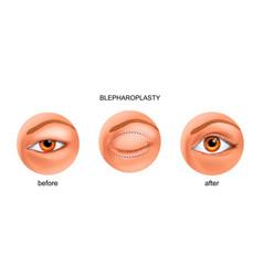 Blepharoplasty of the asian eyelid vector