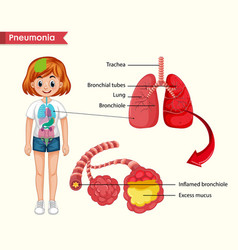 Scientific medical pneumonia concept vector