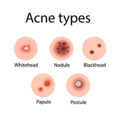 Acne types cosmetology vector