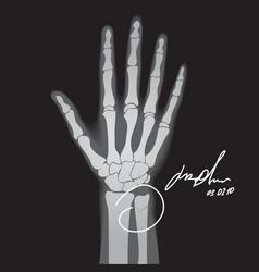 broken hand xray vector image