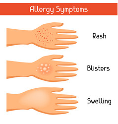 Allergy symptoms for medical vector