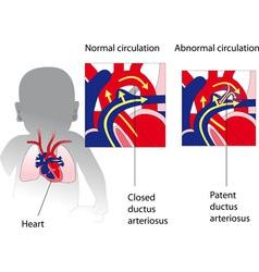 patent ductus arteriosus medicine poster vector image