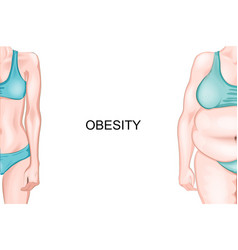 girl with normal weight and obesity vector image