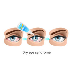 dry eye syndrome treatment vector image