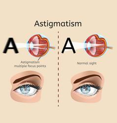 astigmatism medical diagram or scheme vector image