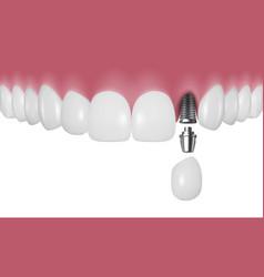 3d realistic render human teeth vector