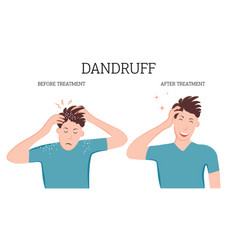 Dandruff before and after treatment vector