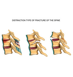 Distraction type fracture spine vector