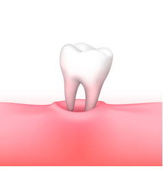 Tooth loss on white background vector