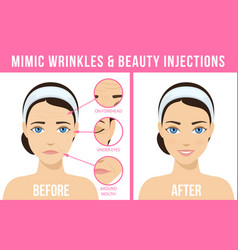 cosmetic procedures botox vector image