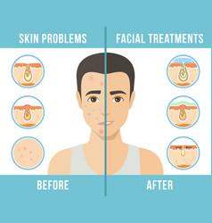 cosmetic procedures skin care vector image