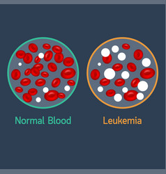 Leukemia icon vector