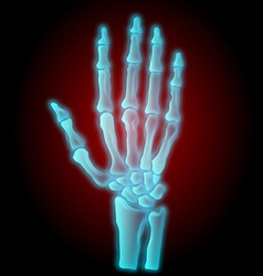 x-ray hand vector image vector image