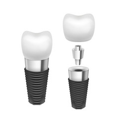 tooth implant vector image