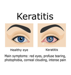 Keratitis disease vector