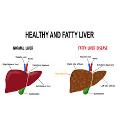 Healthy and fatty liver vector