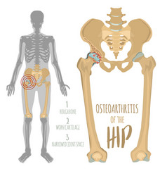 Hip osteoarthritis image vector