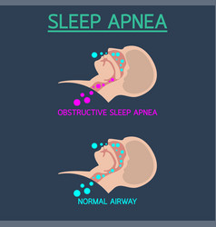 Sleep apnea icon vector
