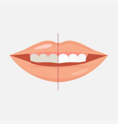 smiling mouth with cleaning teeth before and vector image