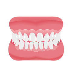 Jaw with teeth icon flat style open mouth vector