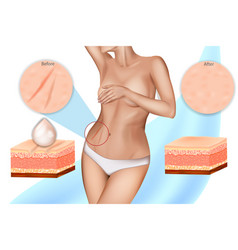stretch marks or striae vector image